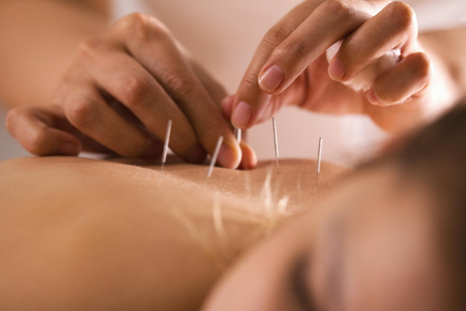 https://integratedhealthofsi.com/wp-content/uploads/2018/11/Acupuncture.jpg